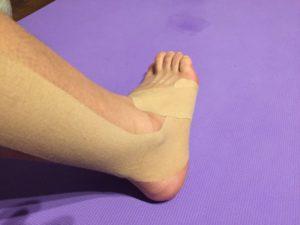 ランニングで足を痛めてしまった